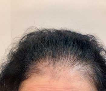 66歳女性